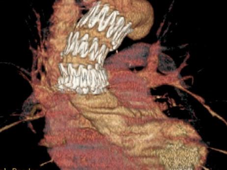 Tratamento endovascular para a Aorta Ascendente!
