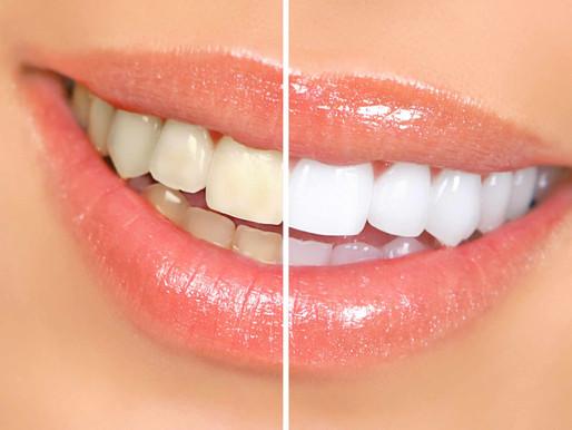 Teeth Whitening – Dental Brands vs Online Products