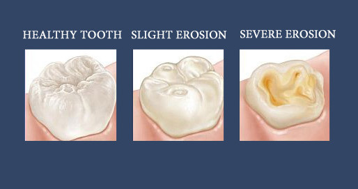 10 Ways to Prevent Dental Erosion