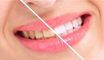 Teeth Whitening Sydney