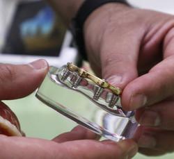 Implant Denture Lower1