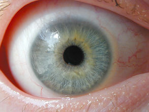 eye2316 freeimages.jpg
