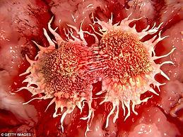 Divisão_de_células_cancerosas.jpg