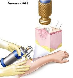 procedimentos - crioterapia.jpeg