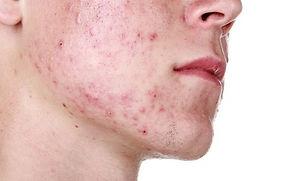 acne capa.jpg