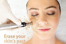 Skin Needling, Micro needling, Needling, Best price in perth, Cheap, Facial, Quality, Relax, Beauty
