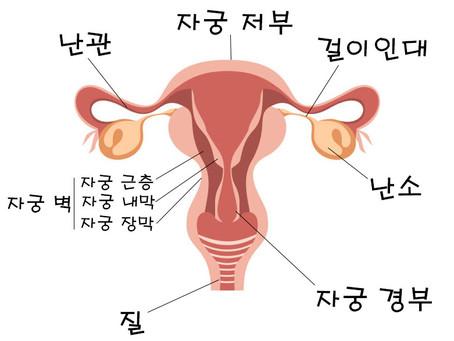 여성 질환의 종류와 증상 (난소낭종, 자궁선근증, 자궁근종)