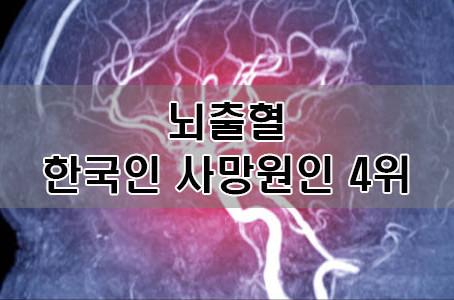 """한국인 사망원인 4위 """"뇌출혈"""""""