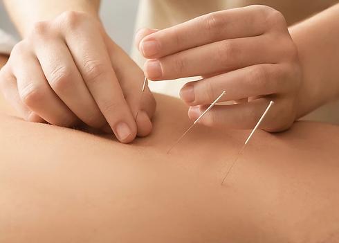 Rowan Health Classical Homeopathy Alternative Medicine Chinese Acupuncture Edinburgh.webp
