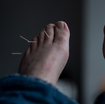 Acupuncture Treatment.jpg