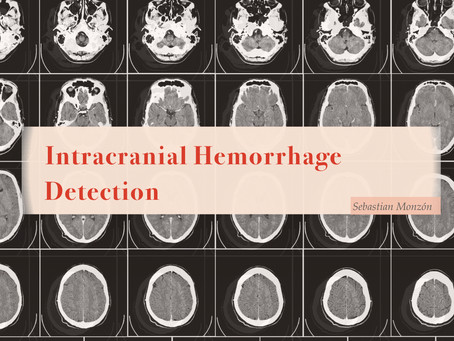 PROJECT: Intracranial Hemorrhage Detection