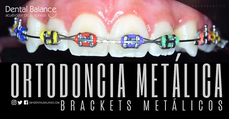 METAL BRACES / BRACKETS METALICOS
