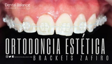 AESTHETIC BRACES / BRACKETS ZAFIRO