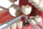 dental-implant-zubov.jpg