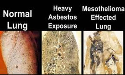 Damaged lungs from asbestos exsposure
