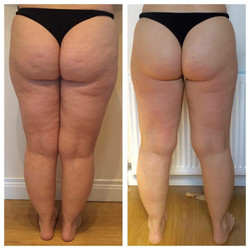 Cellulite and lifting