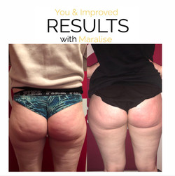 two sessions cellulite reduction