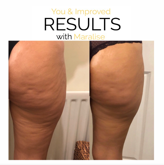 one session cellulite reduction