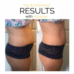 8INCH LOSS ONE SESSION