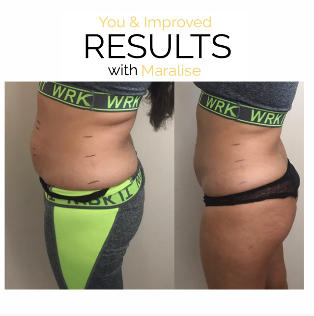 ONE SESSION 4 INCH LOSS