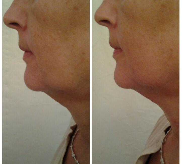 Chin after one treatment