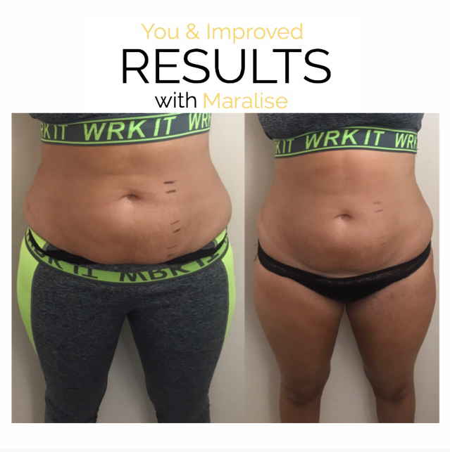 ONE SESSION 4INCH LOSS
