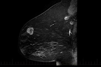 Breast_MRI.jpg