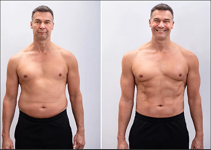 A man before and after liposuction images, with less belly fat and smiling after