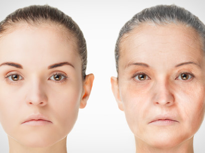 Collagen & Skin Ageing