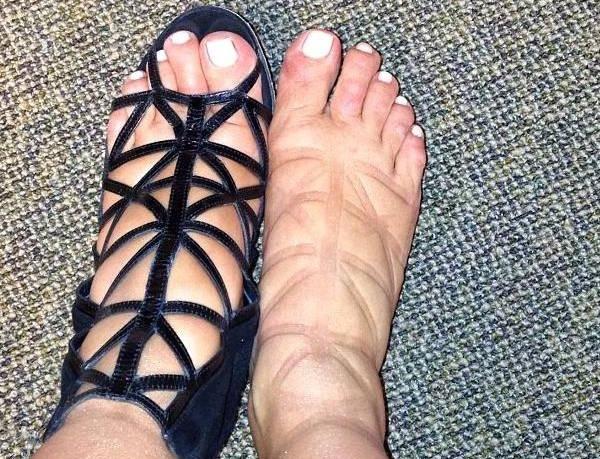 Gestantes com pés inchados! Veja como amenizar!