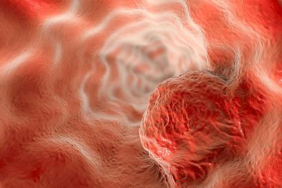 Diseases, LAM, Cancers