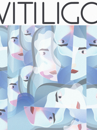 Vitiligo #1