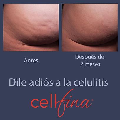Add Cellfina IG 02.jpeg