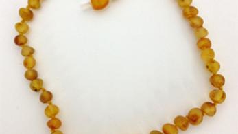 Healing Hazel Baltic Amber Anklet/Necklace