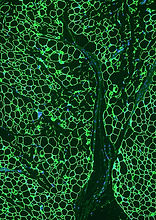 Adipocyte.jpg