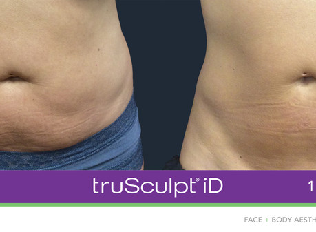 Sculpt Your Best Body | Lehman Advanced Dermatology