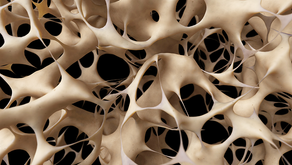 YOU NEED TO READ THIS, IF YOU HAVE OSTEOPOROSIS
