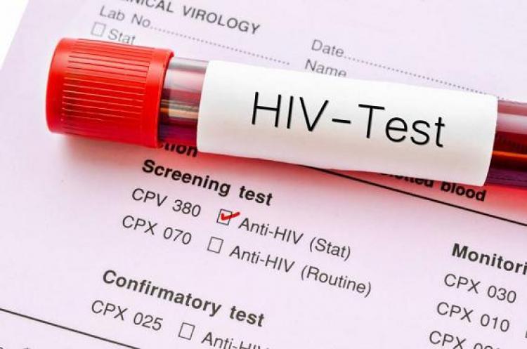 เอชไอวี เอดส์ ตรวจเอดส์ ตรวจเลือด ตรวจเอชไอวี เจาะเลือด วิธีตรวจเลือด