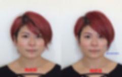 小顔美容矯正5