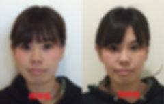 小顔美容矯正1