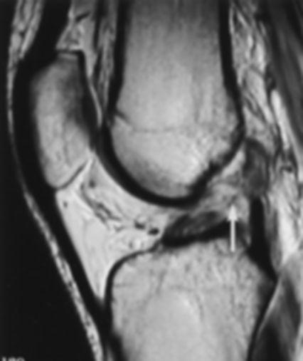 MRI Torn ACL