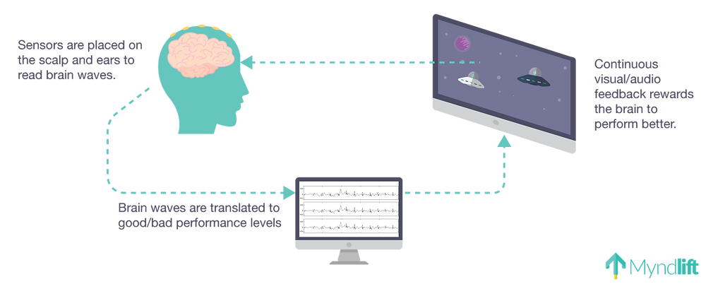 how neurofeedback works