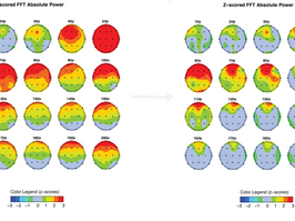 Home Neurofeedback at Behavioral Associates