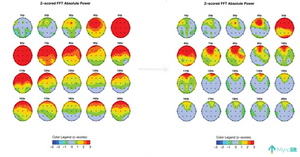 qEEG brain map before and after daily use of Myndlift