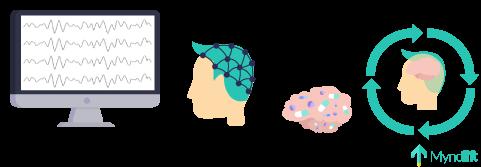 neurofeedback illustration