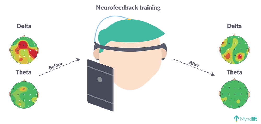 neurofeedback training delta theta