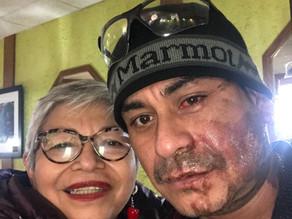 Detienen a sospechoso de arrojar ácido al rostro de inmigrante latino
