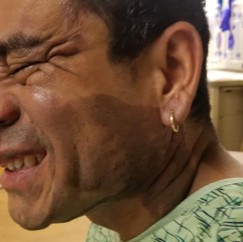 Mahud Villalaz, víctima de ataque.