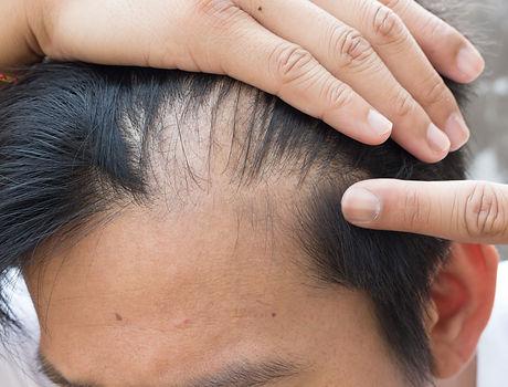 man is hair loss .jpg
