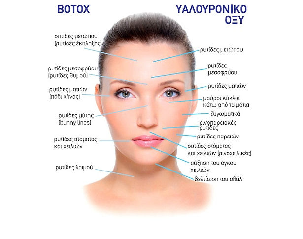 botox parts.jpg